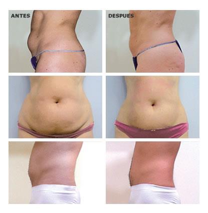 Resultados tras haber reducido o quitado la celulitis y grasa localizada