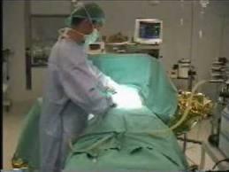 Lipoescultura con cirugía