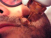 Fotodepilación para la barba masculina
