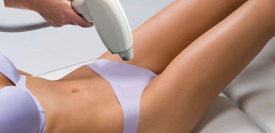 depilacion laser mujer