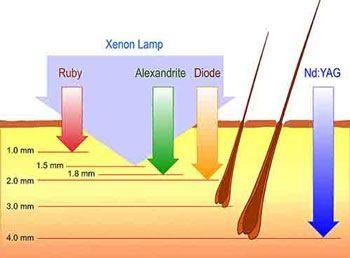 profundidad laser alejandrita diodo nd-yag